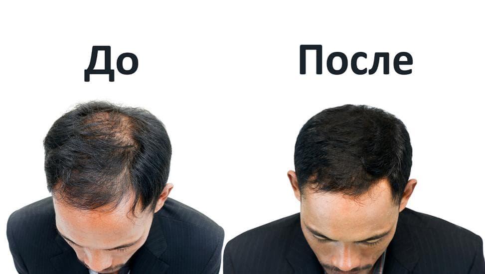 Лазерное лечение выпадения волос: до и после