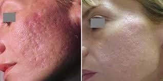 Удаление шрамов после угревой болезни: до и после