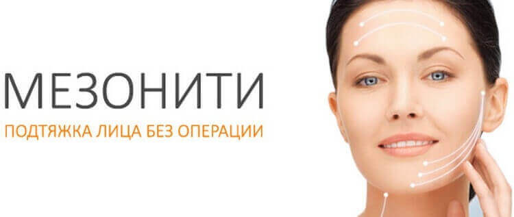 Мезонити - подтяжка лица без операции