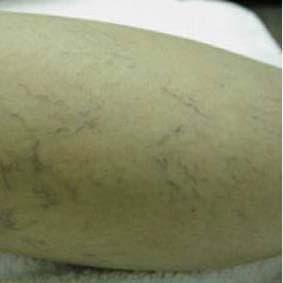 Удаление варикозных вен на ногах лазером: до процедуры